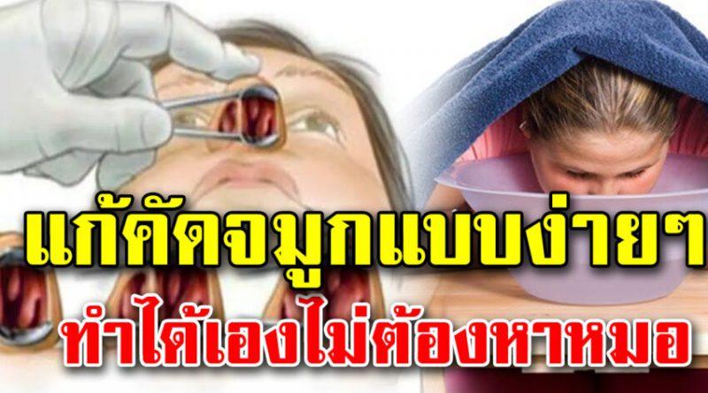 แนะวิธีแก้อาการคัดจมูก แบบง่ายๆ ไม่ต้องกินยาหรือไปหาหมอ